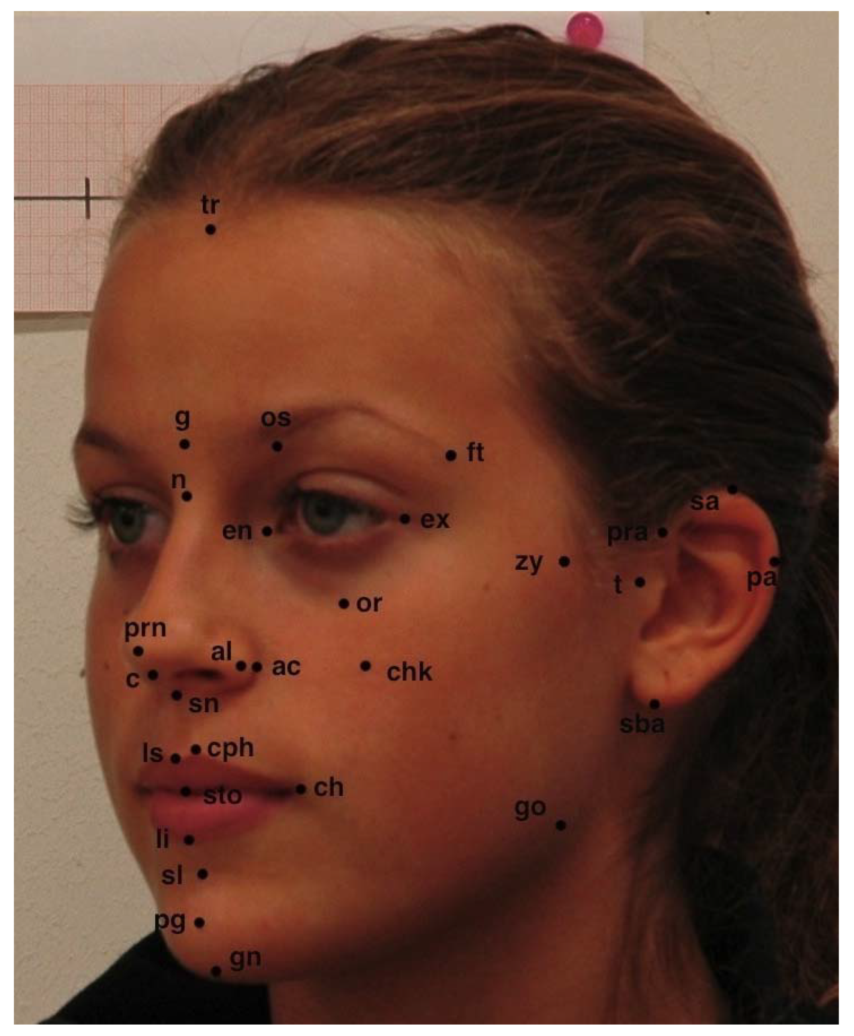 measuring-facial-symmetry